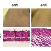 모낭조직 분화를 촉진하는 제대혈 줄기세포 분비 단백질을 이용한 탈모 방지 및 발모용 의약품 개발