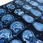 메디포스트 알츠하이머 치료제 관련 특허 취득
