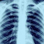 메디포스트 폐질환 치료제, 유럽서 희귀의약품 지정