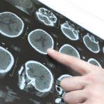 메디포스트 알츠하이머 치료 주요 물질 日 특허