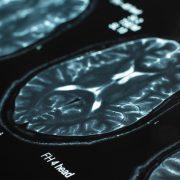 메디포스트 제대혈 줄기세포 이용한 치매 치료 유럽 6국 동시 특허